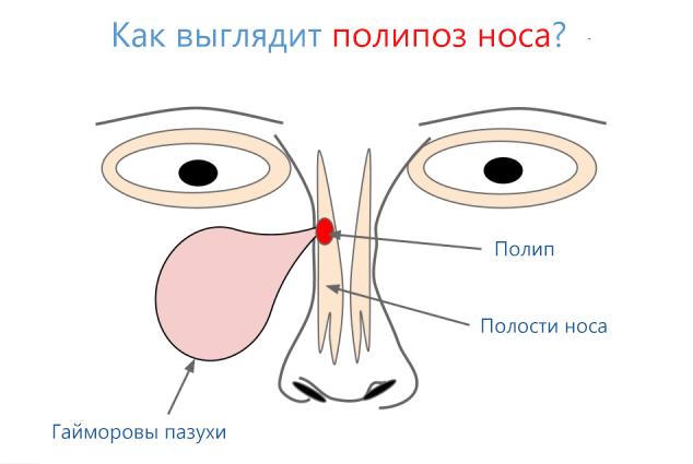 Как выглядит полипоз носа