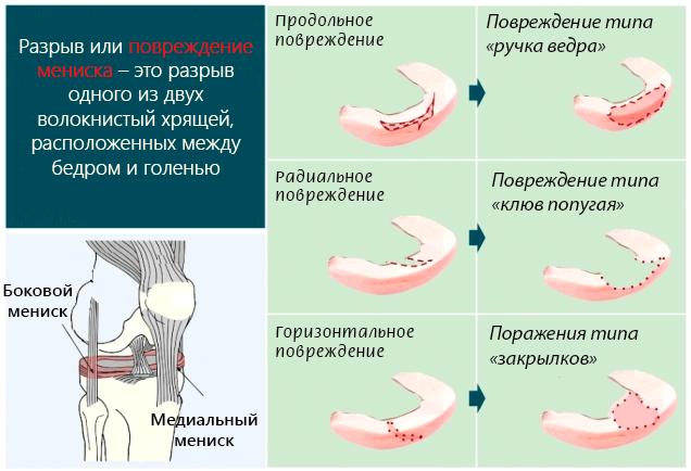 Разрыв или повреждение мениска – это разрыв одного из двух волокнистый хрящей в колене
