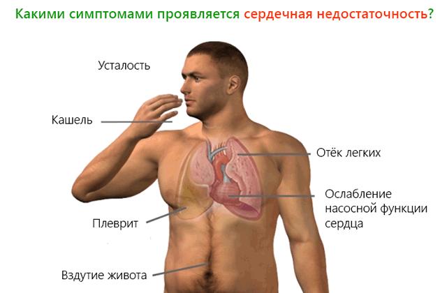 Какими симптомами проявляется сердечная недостаточность
