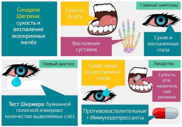 Синдром Шегрена: сухость и воспаление экзокринных желёз