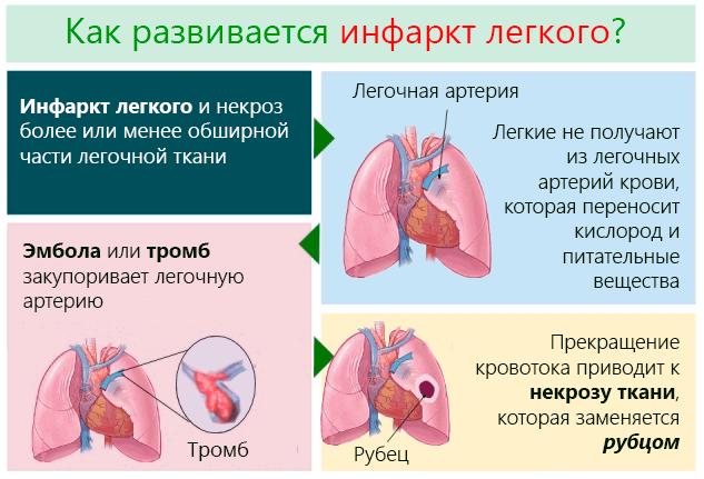 Как развивается инфаркт легкого