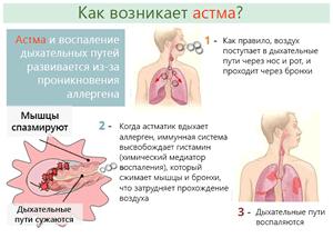 Три стадии развития бронхиальной астмы