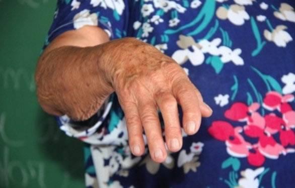 Рука пожилой женщины поврежденная ревматоидным артритом