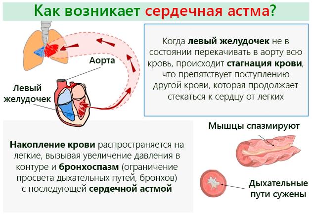 Сердечная астма – симптомы и терапия дисфункции сердца