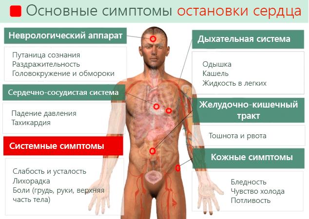 Основные симптомы остановки сердца