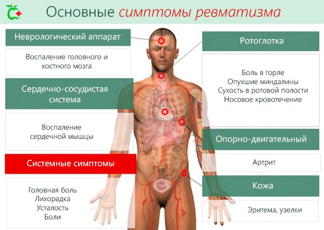 Основные симптомы ревматизма