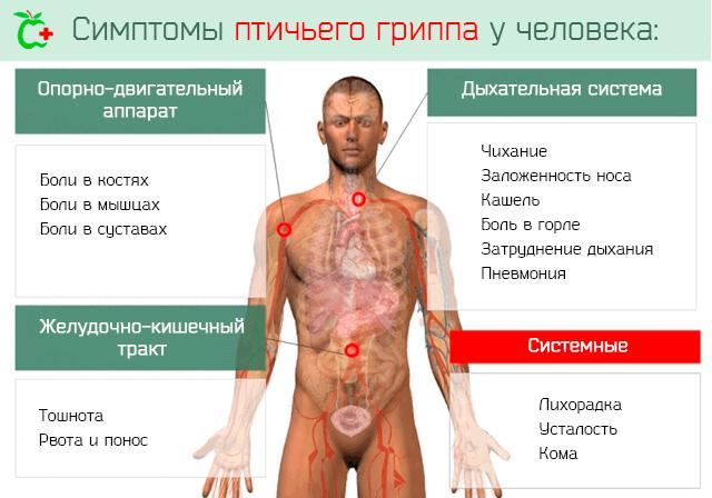 Симптомы заражения птичьим гриппом у человека