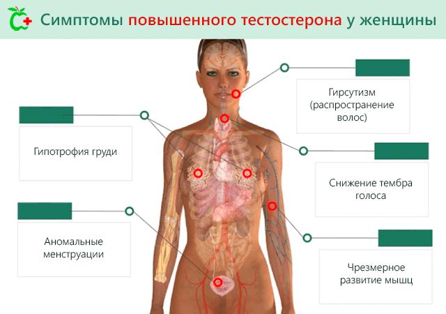 Симптомы повышенного тестостерона у женщины