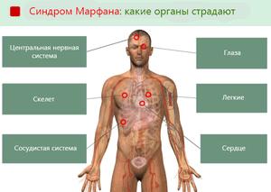 Органы, которые страдают при синдроме Марфана