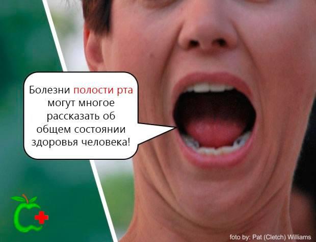 Девушка с кариесом показывает состояние рта