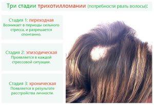 Три стадии трихотилломании (потребности рвать волосы)