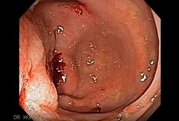 Вид кишечника при болезни Крона во время колоноскопии