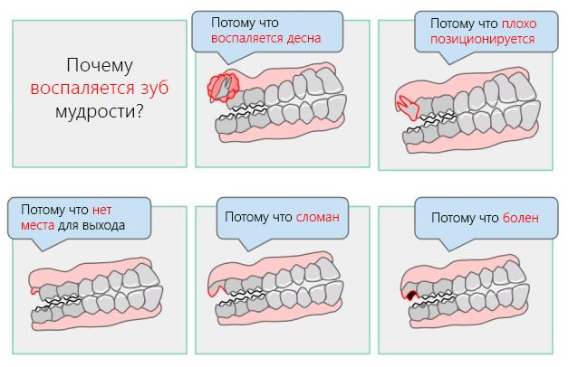 Почему воспаляется зуб мудрости – причины