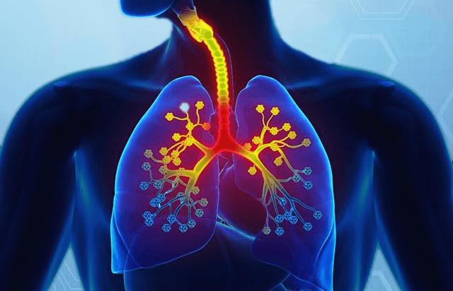 Инфекционное воспаление легких у человека