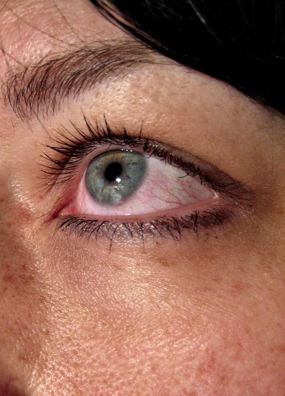 Глаз воспаленный от действия аллергенов