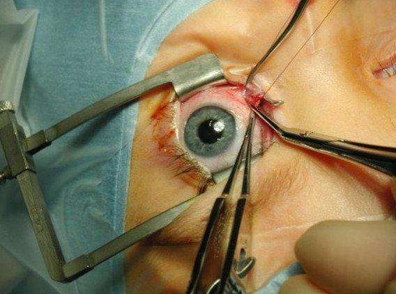 Проведение операции на глазу по исправлению амблиопии