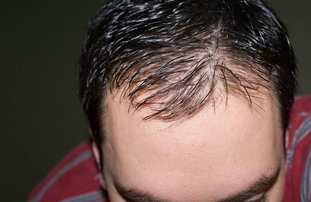 Типичная андрогенная алопеция у мужчины