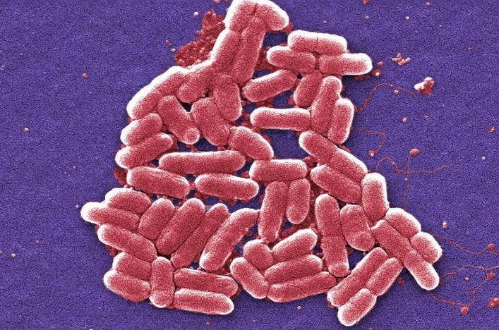 Бактерия Shigella - увеличение в 6836 раз