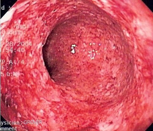 Колоноскопия при болезни Крона