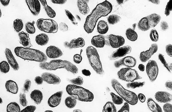 Бактерии Coxiella burnetii вызывающие Ку-лихорадку