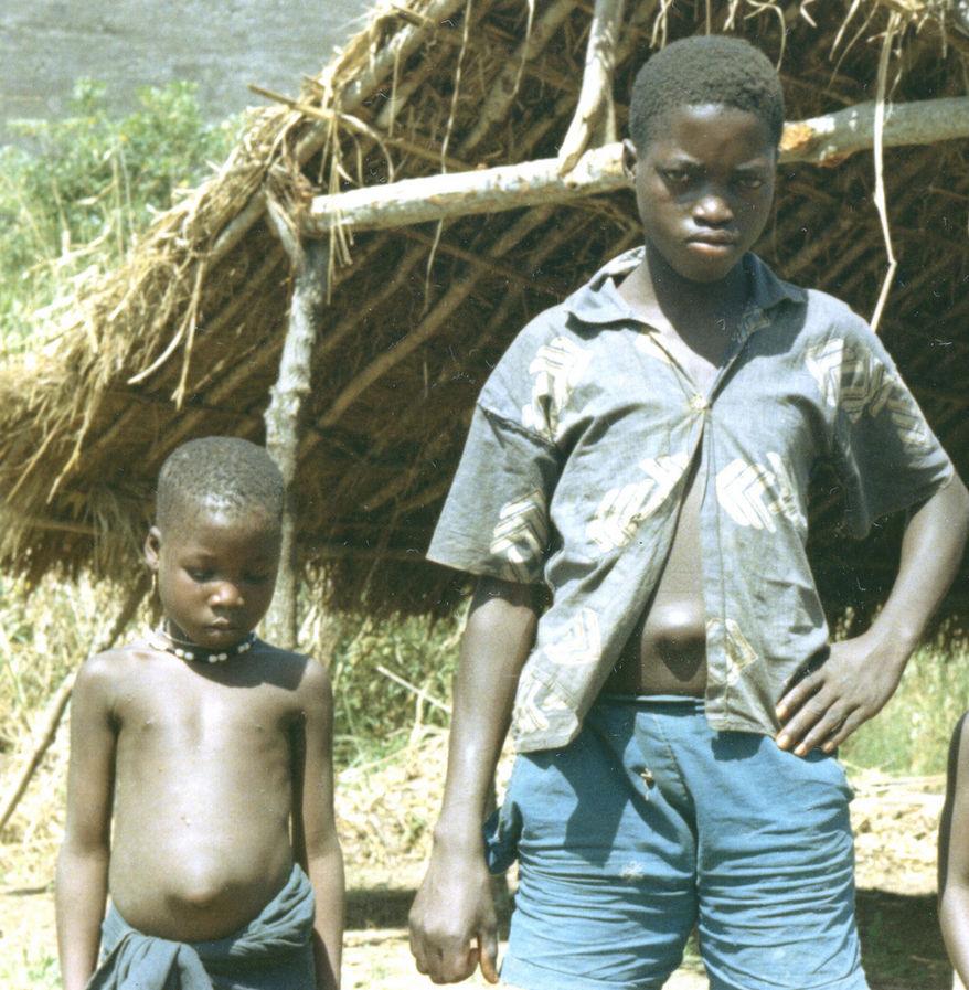 Дети с пупочной грыжей, Сьерра-Леоне (Западная Африка), 1967
