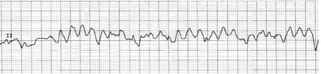 Мерцание камер сердца является частой причиной смерти