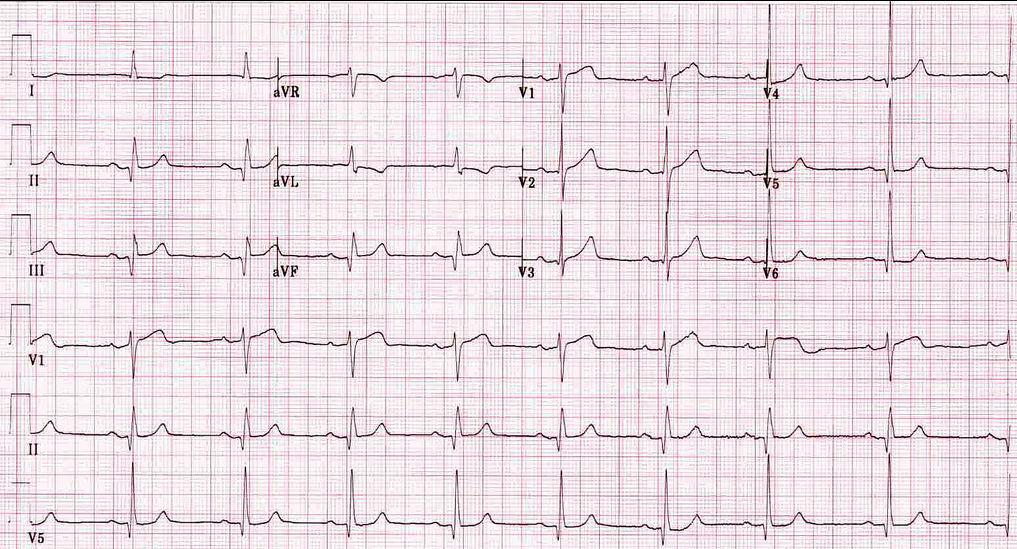 ЭКГ при синусовой брадикардии после инфаркта