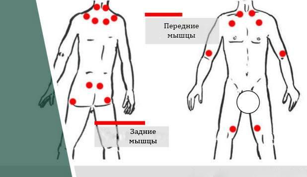 Точки проявления фибромиалгии мышц