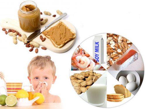 Пищевые продукты, часто вызывающие аллергическую реакцию у детей