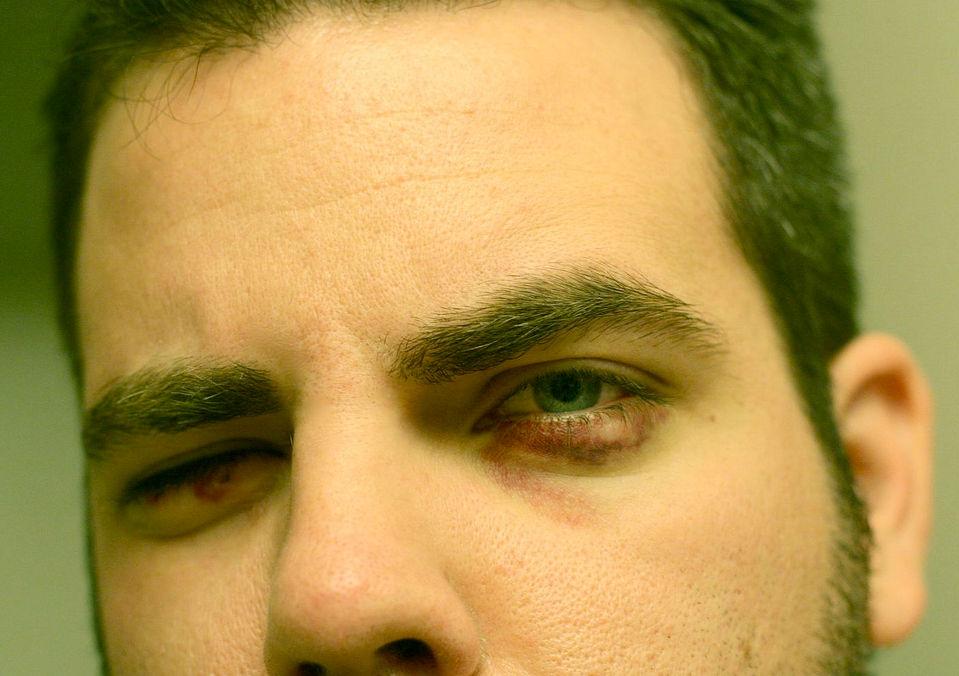 Кровоподтек на веке глаза мужчины