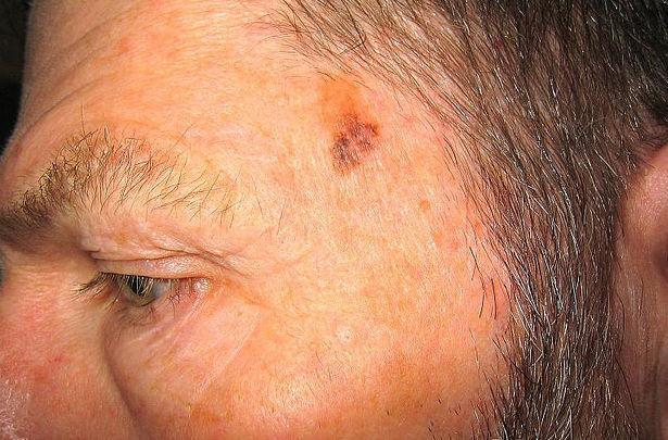 Меланома (рак кожи) на голове