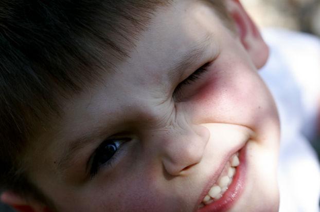 Нервный тик глаза у мальчика