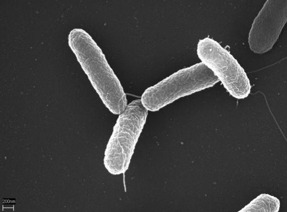 Палочки сальмонеллы под электронным микроскопом