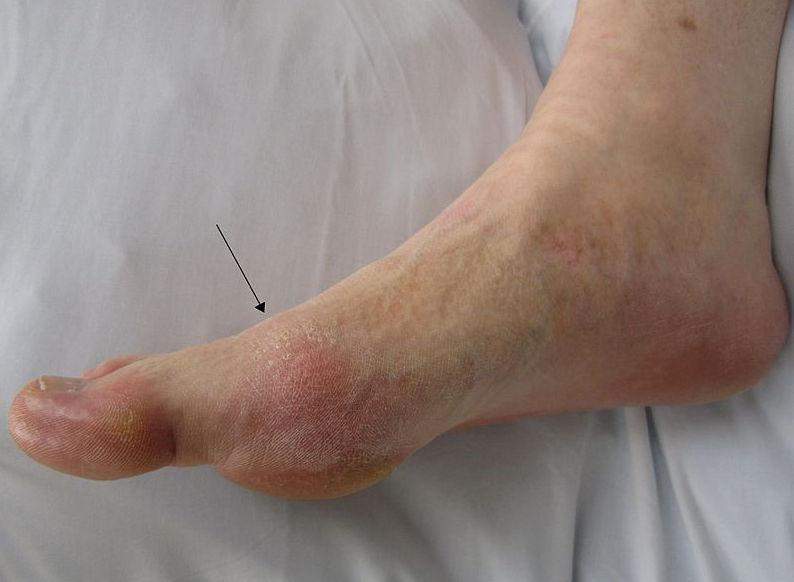 Подагрические отложения на ступне