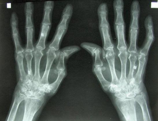 Ревматоидный артрит - рентгеновский снимок рук