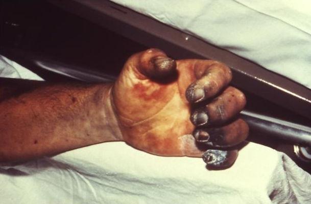 Рука пораженная септической формой чумы