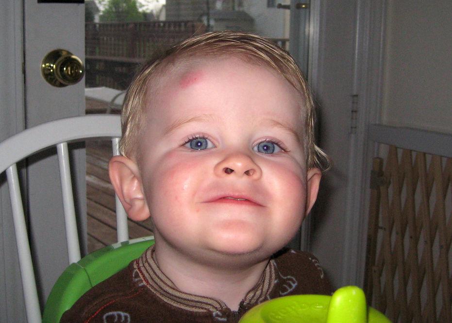 Ребенок упал и ударился щекой половиной лица