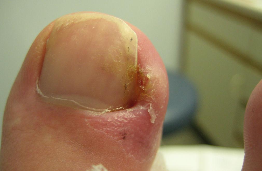 Вросший ноготь после операции выреза клина