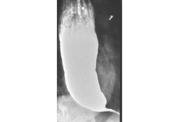 Рентгеновский снимок пищевода при ахалазии