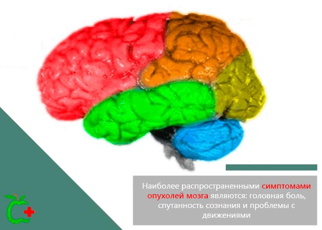 Наиболее распространенные симптомы опухолей мозга