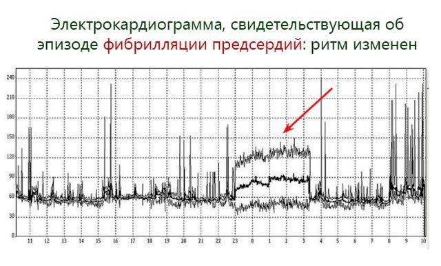 Электрокардиограмма, свидетельствующая об эпизоде фибрилляции предсердий: ритм изменен