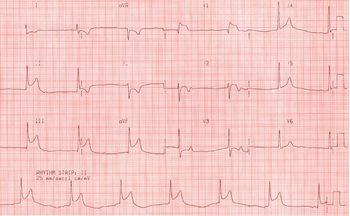 Инфаркт желудочков миокарда: кардиограмма