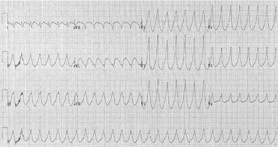 Запись ЭКГ при желудочковой тахикардии