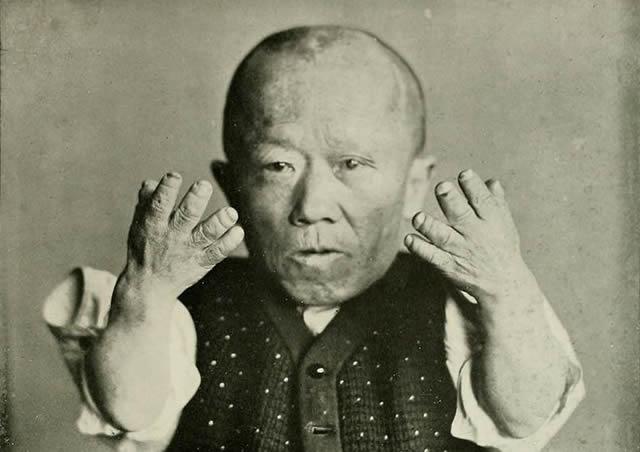 Мужчина-карлик демонстрирует свои руки