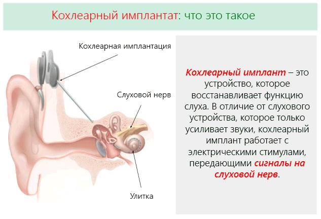 Кохлеарный имплант – это устройство, которое восстанавливает функцию слуха