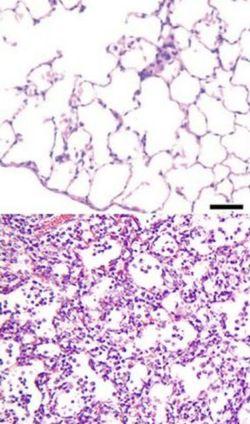 Фотография ткани легких под микроскопом