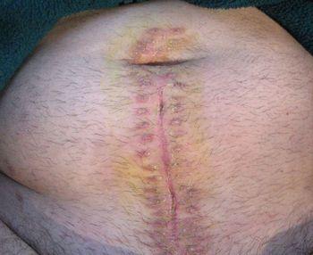 Операционный шов на животе после перитонита