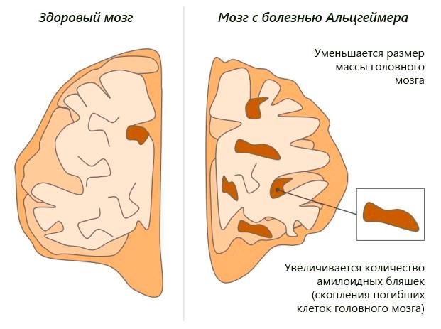 Типичные изменения мозга при болезни Альцгеймера