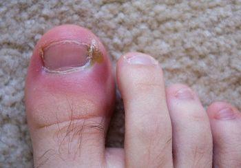 Паронихия большого пальца ноги