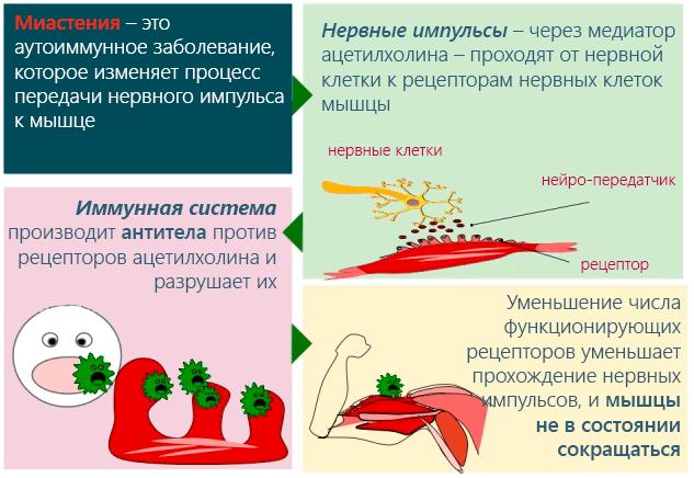Объяснение процесса развития миастении мышц